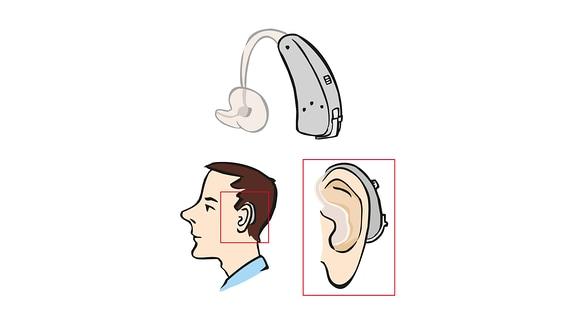 Hör-Gerät