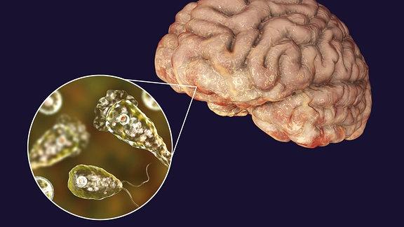 Computer Darstellung einer Gehirn fressenden Amöbe