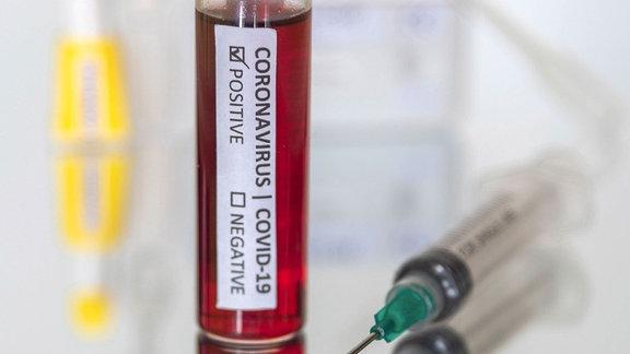Antikörper-Bluttest für Coronavirus COVID-19