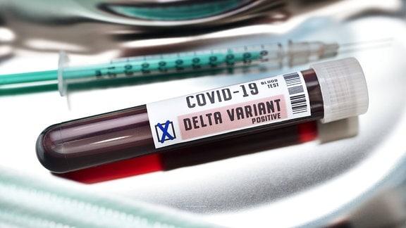 Symbolfoto - Blutprobe mit Coronavirus Delta-Variante