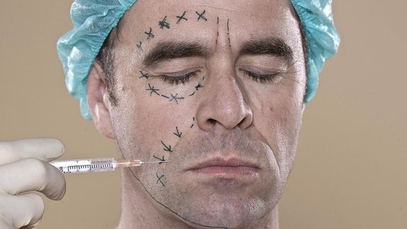 Mann mit Markierung für eine Schönheitsoperation