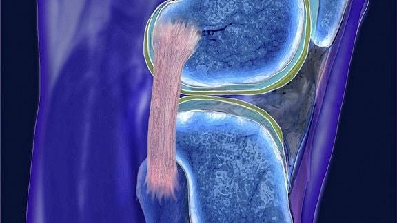 MRT-Aufnahme eines menschlichen Kniegelenkes