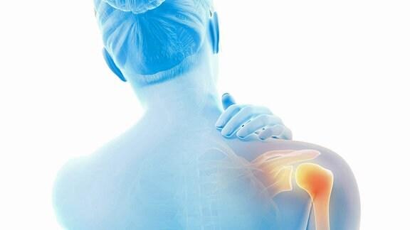 3D-Darstellung einer Frau in Rückenansicht: Die Frau fasst sich vor Schmerzen an die Schulter. Die schmerzenden Stelle ist gelborange eingefärbt.