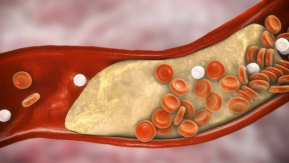 3D-Darstellung einer Arterie, an deren Wand sich ein Cholesterin-Plaque abgesetzt hat.