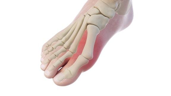 Grafische Darstellung der Fußknochen bei einem Ballenzeh