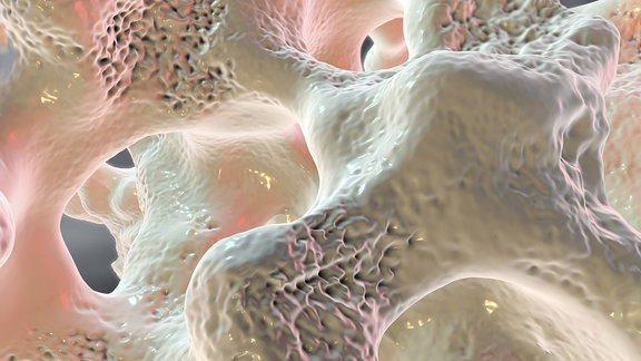 Darstellung eines Knochens mit Osteoporose