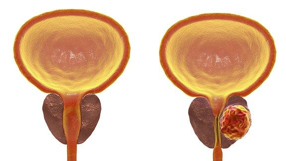 zwei männliche Harnblasen mit Prostata im Querschnitt nebeneinander: links mit gesunder Prostata, rechts mit tumorbefallener Prostata