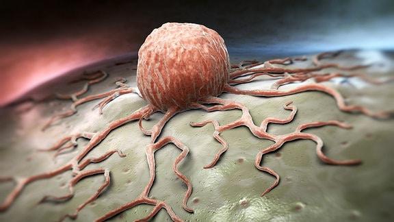 grafische Darstellung eines Tumors.