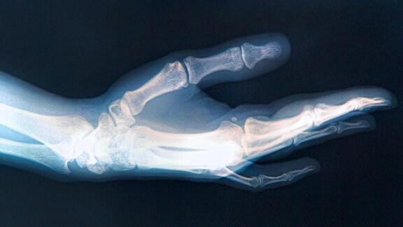 Röntgenaufnahme von einer Hand.