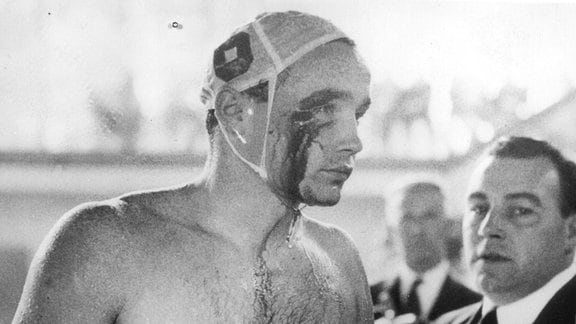 Der ungarische Spieler Ervin Zador wird im Wasser von einem UdSSR-Spieler angegriffen und so verletzt, dass Blut aus einer Wunde am rechten Auge fließt.