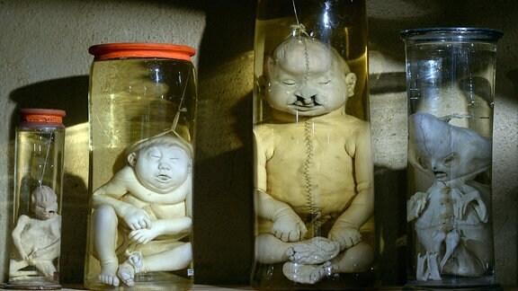 Anatomische Präparate fehlgebildeter Kinder aus dem 18. Jahrhundert werden im Naturalienkabinett des Museums in Waldenburg (Sachsen) gezeigt