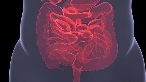 Röntgenbild Darm