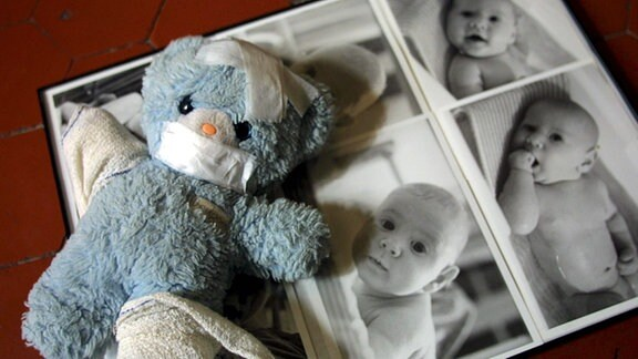Themenbild: Kindesmisshandlung - Ein Teddy mit Pflastern und Verbänden liegt auf einem Fotoalbum mit Babyfotos.