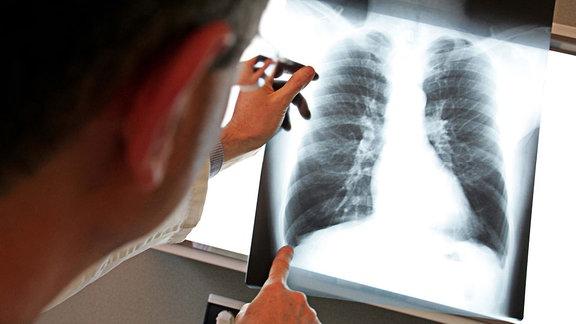 Röntgenbild einer Lunge