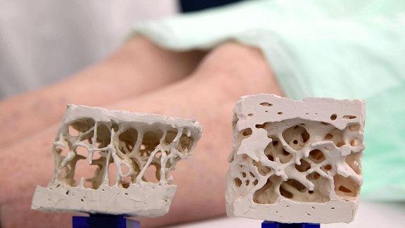 Osteoporose Knochenmodell
