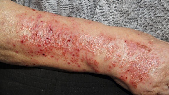 Hautausschlag am Arm.