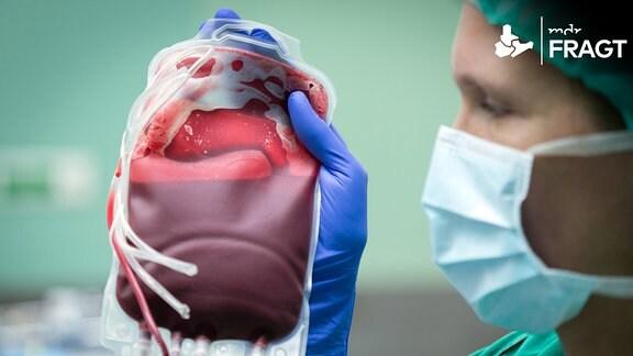 Eine Ärztin hält einen Beutel mit Erythrozyten-Konzentrat.
