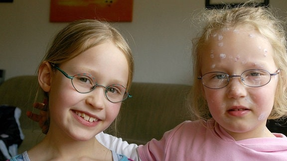 Zwei Schwestern stehen gemeinsam die Windpocken durch.