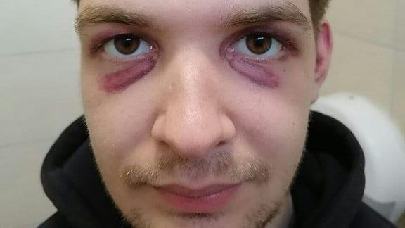 Ein Mann hat Hämatome unter den Augen
