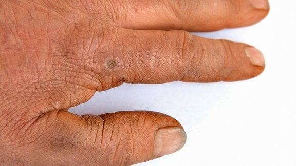 Warze auf einem Finger