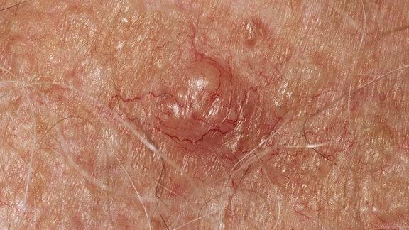 Weißér Hautkrebs auf der Haut