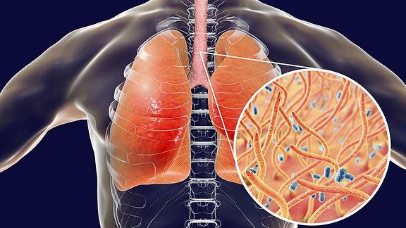 Auf einem menschlichen Brustkorb sind die Lungen zu sehen. Daneben in der Vergrößerung die Keuchhustenerreger.