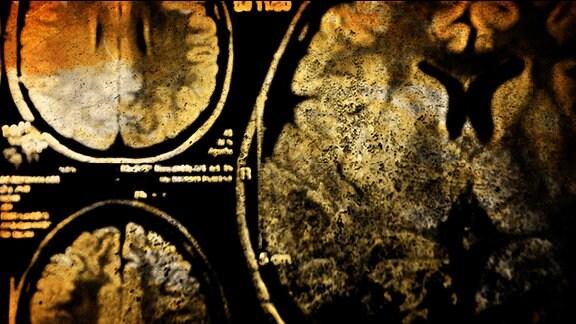 Scan des Gehirns.