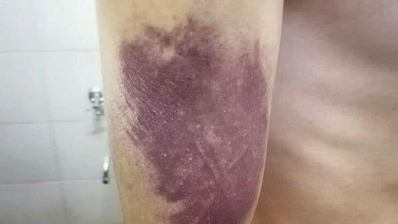 Ein Mann hat ein großes, dunkelrotes Hämatom am Oberarm