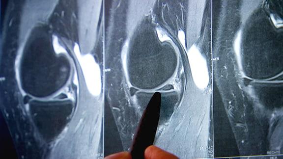 Röntgenaufnahme eines Kniegelenks mit Bakerzyste