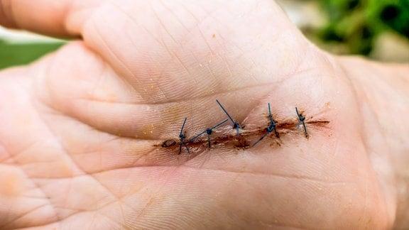 Frisch operierte Hand nach einer Karpaltunnelsyndrom Operation