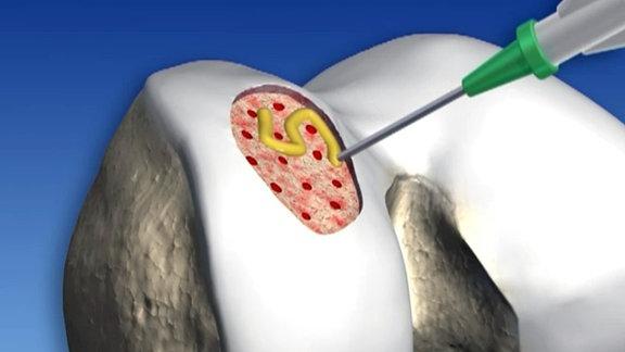 Knorpel aus Biomaterialien