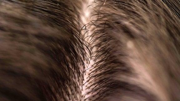 Eine Detailaufnahme vom Haaransatz
