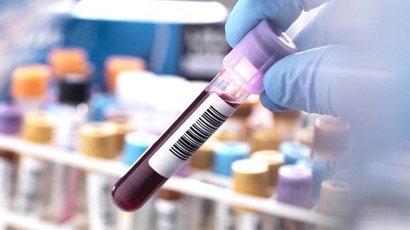 Eine Hand hält eine Blutprobe
