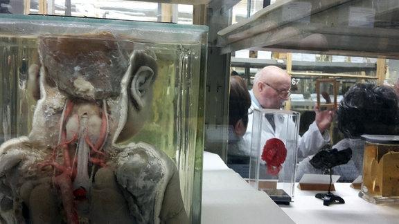 Blick auf ein anatomisches Präparat, dass die einen Menschen von hinten mit Einsicht auf seine Organe zeigt