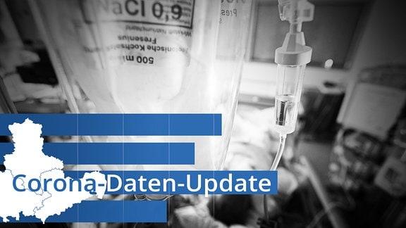 Symbolbild - Ein Patient liegt auf einer Intensivstation im Krankenhaus.