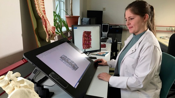 Lernstoff der Zukunft? Doktorandin Dina Wiersbicki zeichnet bisher unbeachtete Bänder in Darstellungen von Wirbelsäulen ein. Vielleicht erkennen Orthopäden darin künftig die Ursache für Rückenschmerzen.