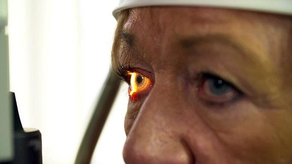 Lichtstrahl in einem Auge