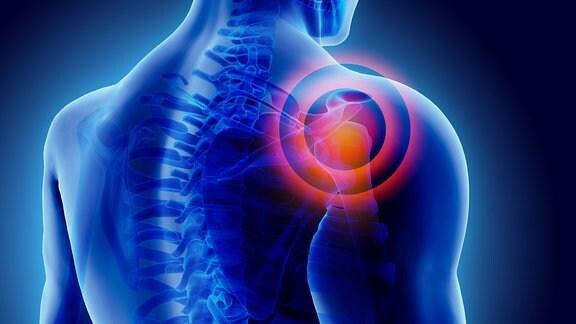 3D-Illustration von Schmerzen in der Schulter