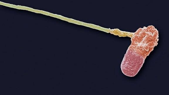 Spermium Deormation
