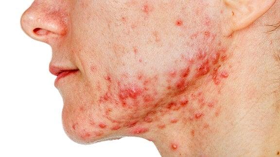 Seitenansicht Nase bis Kinn einer jungen Frau mit vielen Pickeln und Rötungen, besonders im Kinn- und Kieferbereich