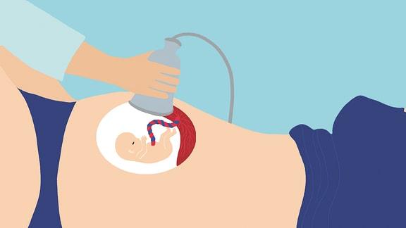 Das Bild zeigt die Untersuchung des Babys im Bauch mithilfe der Sonografie