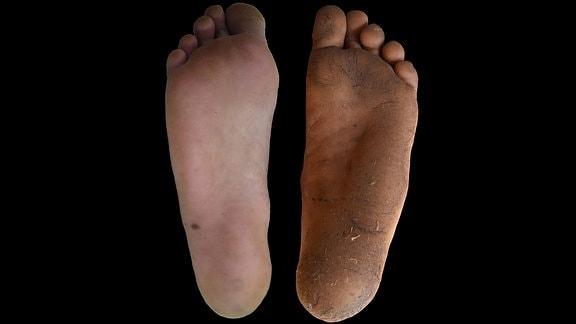 Bildvergleich - links der Fuß eines Schuhträgers, rechts der Fuß eines Menschen, der vor allem barfuß geht. Der Fuß der Barfußgängers ist dunkler, die Hornhaut ist dicker.