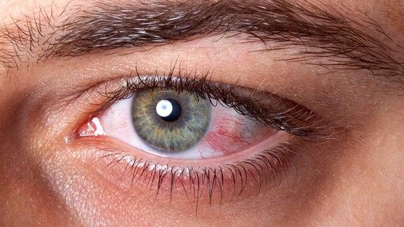 Nahaufnahme eines menschlichen Auges mit Bindehautentzündung.