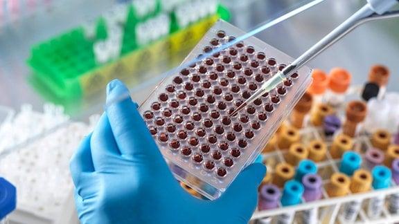 Blutproben in einem Labor