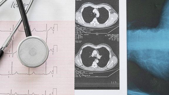 Nahaufnahme des Stethoskops auf medizinischen Berichten