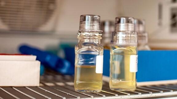 Spezielle Flaschen für die Urinprobe.