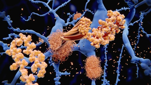 Eiweiß-Ablagerungen bei Alzheimer-Erkrankung amyloid plaques