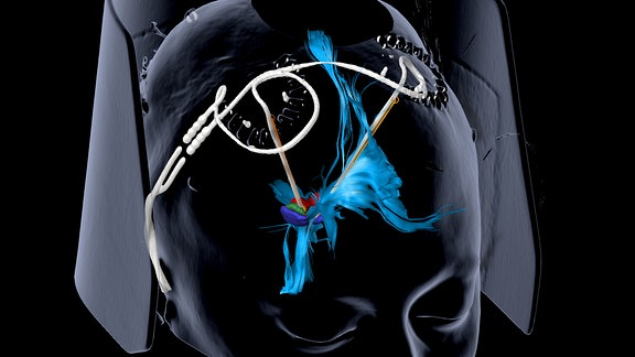 Darstellung eines menschlichen Schädels, auf dem sich zwei dünne Kabel befinden, die bis ins Innere des Gehirns reichen. Sie enden in einem bunten Bereich, der das Belohnungszentrum darstellen soll.