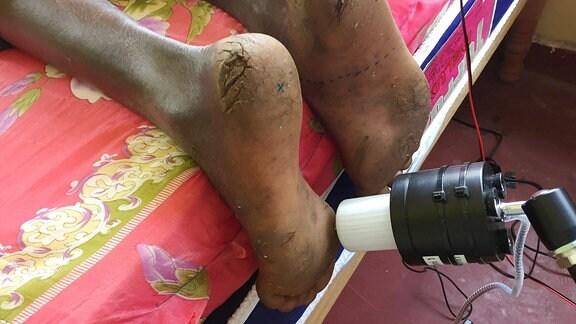 Ein Forschungsgerät, mit dem die Forscher testen, wie sensibel die Füße von Barfußgängern sind.