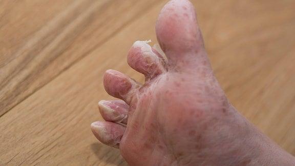 Fuß häutet sich nach viraler Hautkrankheit